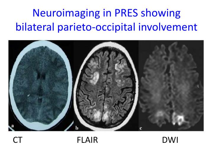 Neuroimaging in PRES showing bilateral