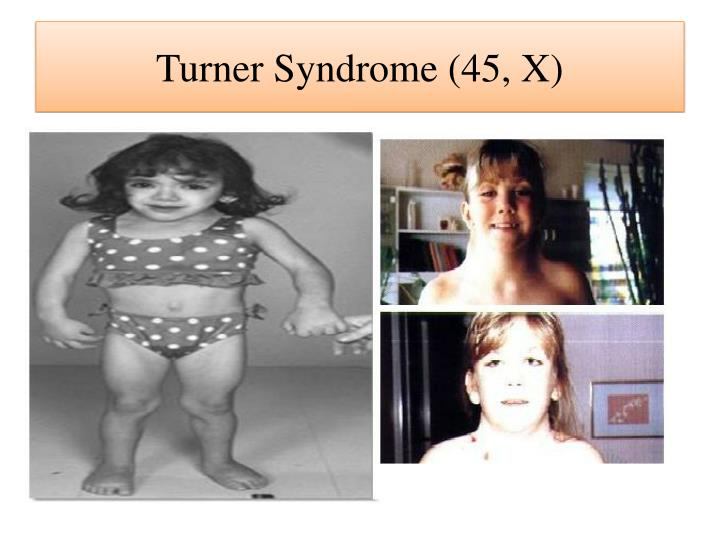 Turner Syndrome (45, X)
