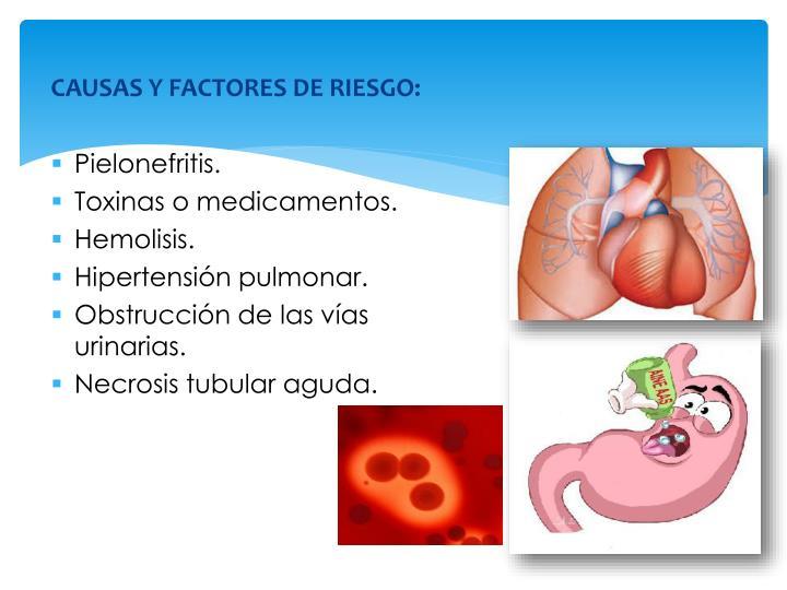 CAUSAS Y FACTORES DE