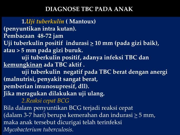 DIAGNOSE TBC PADA