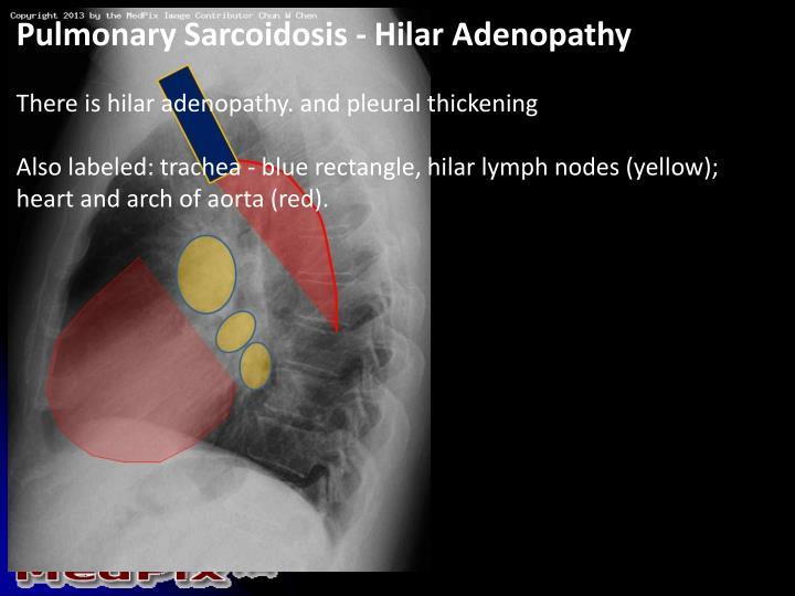 Pulmonary Sarcoidosis - Hilar Adenopathy