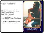 cystic fibrosis2