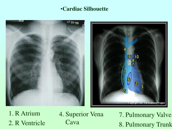 Cardiac Silhouette