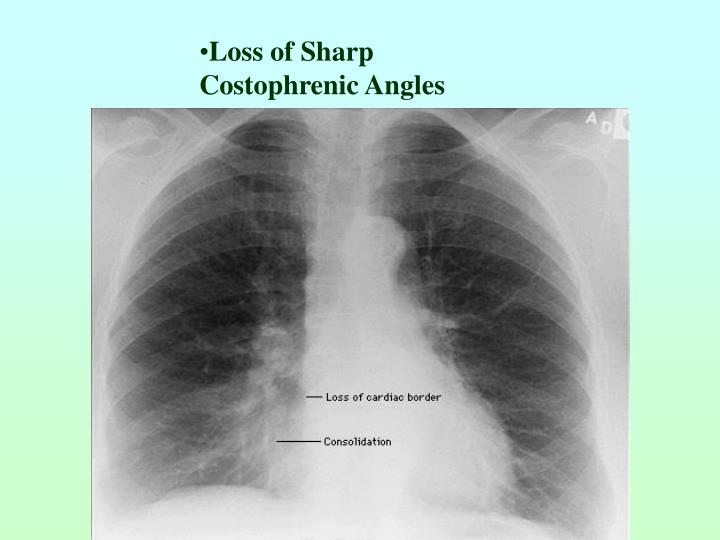 Loss of Sharp Costophrenic Angles