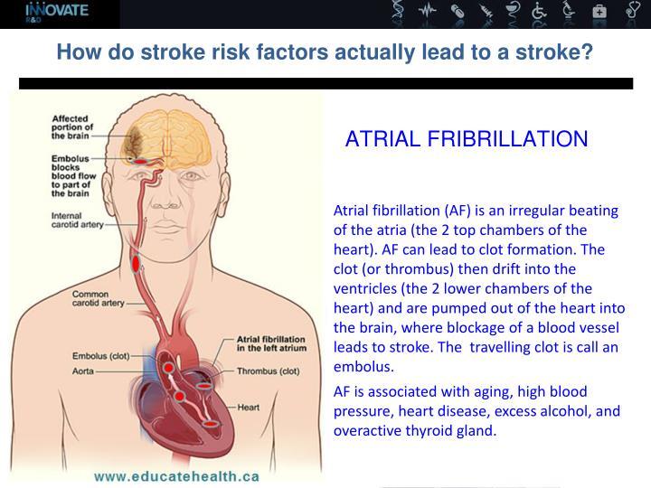 ATRIAL FRIBRILLATION
