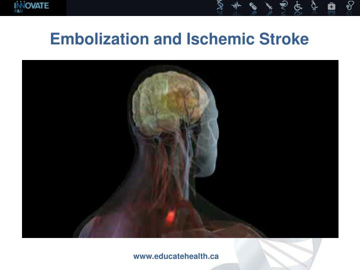 Embolization and Ischemic Stroke