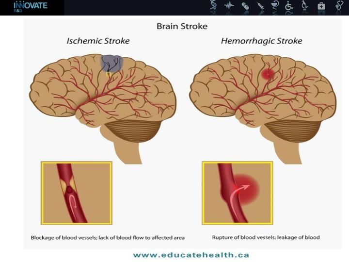 Understanding stroke risk and treatment