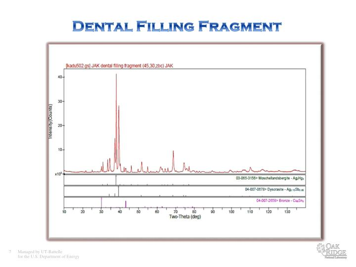 Dental Filling Fragment