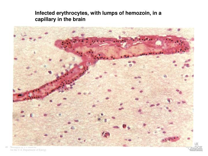 Infected erythrocytes, with lumps of hemozoin, in a capillary in the brain