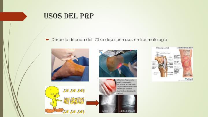 Usos del PRP