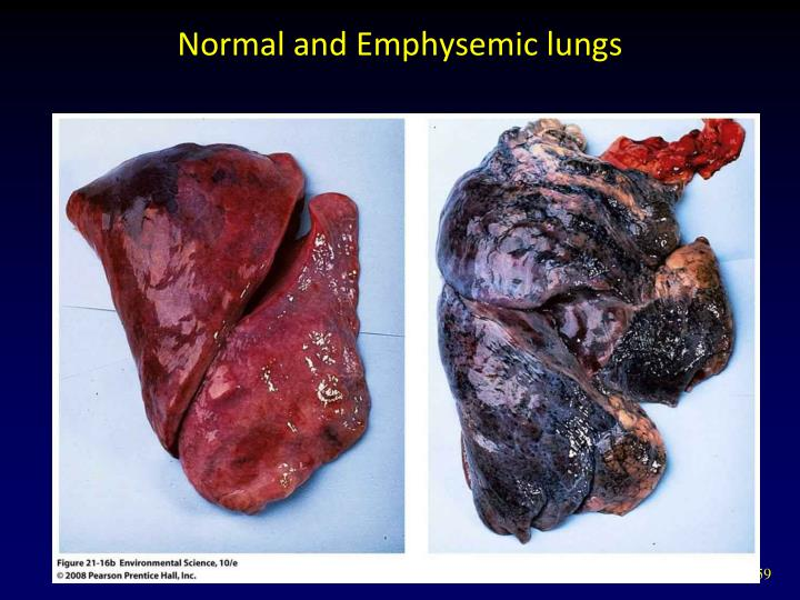 Normal and Emphysemic lungs