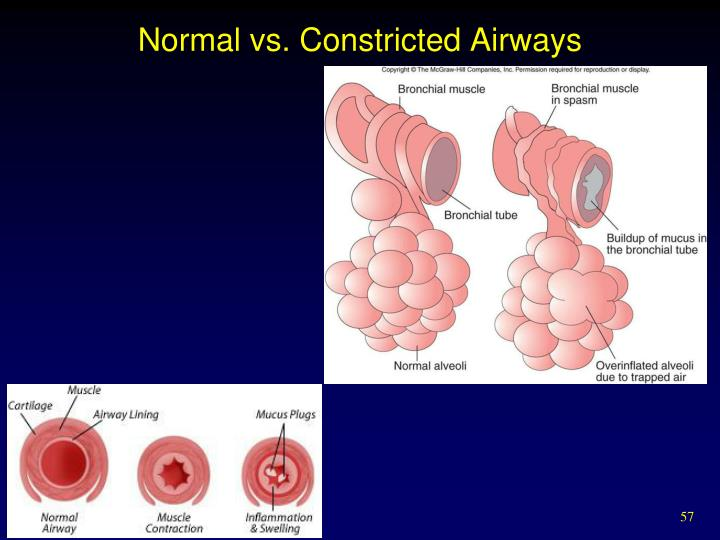 Normal vs. Constricted Airways