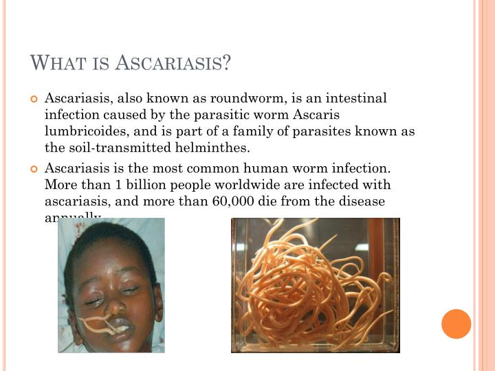 What is ascariasis