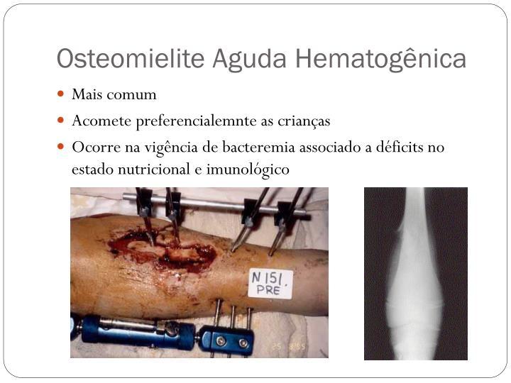Osteomielite Aguda Hematogênica