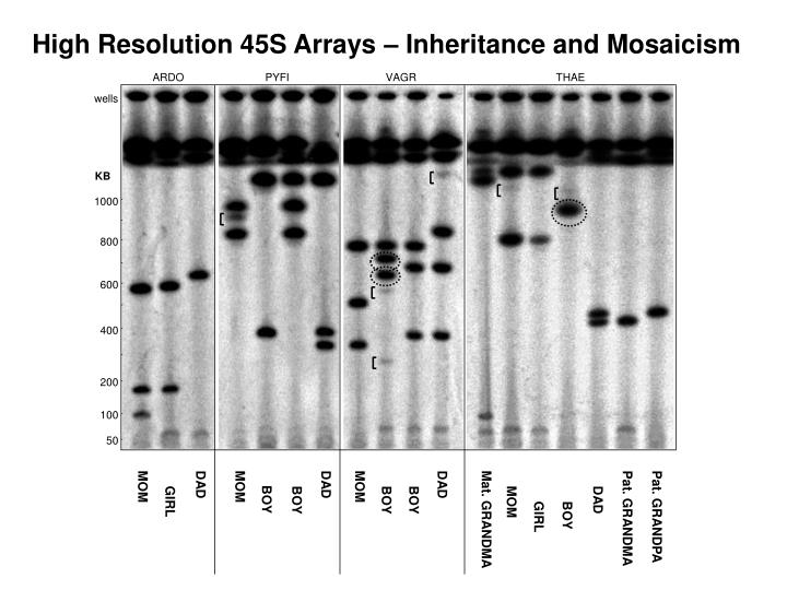 High Resolution 45S Arrays – Inheritance and Mosaicism