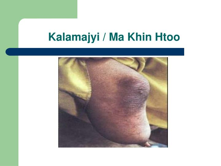 Kalamajyi / Ma Khin Htoo