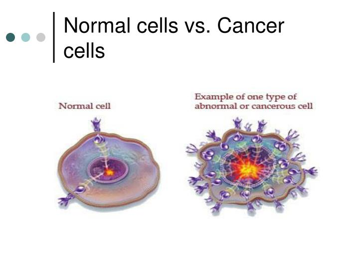 cancer cells vs normal cells What is the difference between normal and malignant cells find out about the defining features of malignant cells including anaplasia - failure to differentiate.