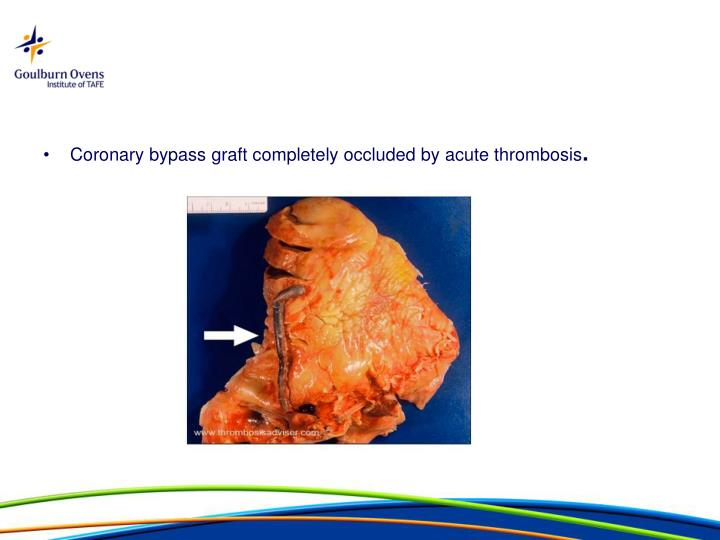 Coronary bypass graft completely occluded by acute thrombosis