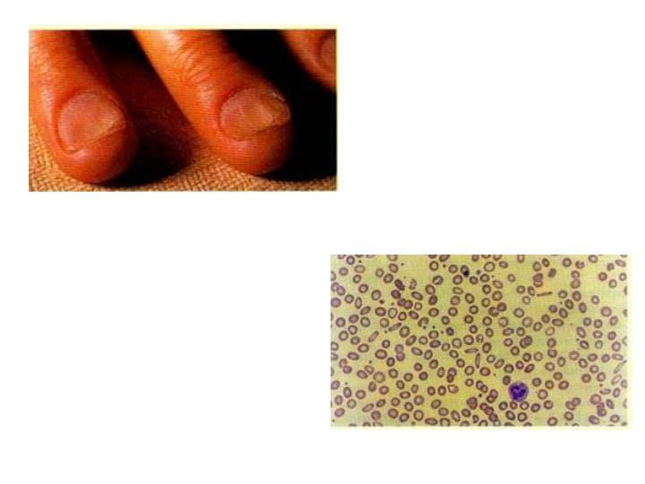 Koilonychia in a male patient with severe iron deficiency anaemia