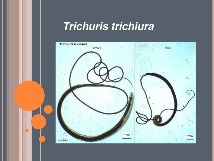 Trichuris trichiura