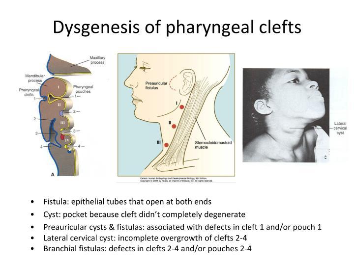 Dysgenesis of pharyngeal clefts