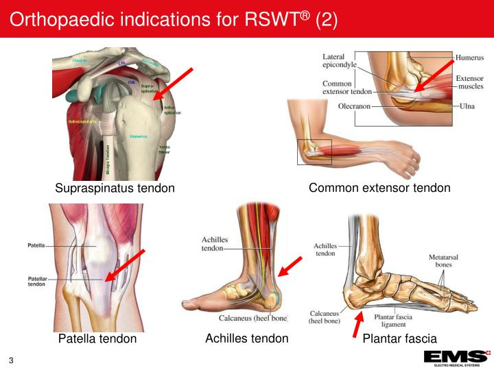 Orthopaedic indications for rswt 2