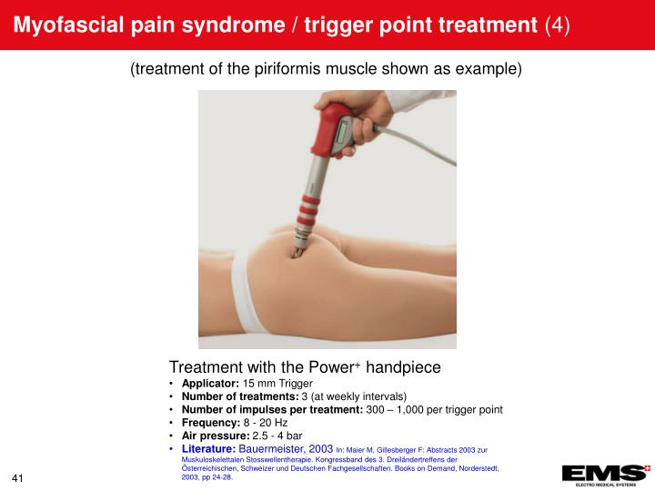 Myofascial pain syndrome / trigger point treatment