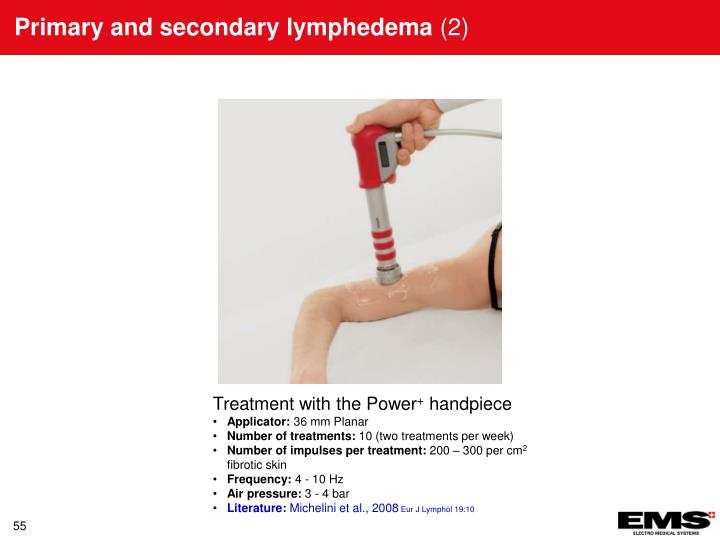 Primary and secondary lymphedema