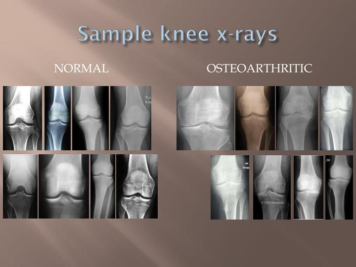 Sample knee x-rays