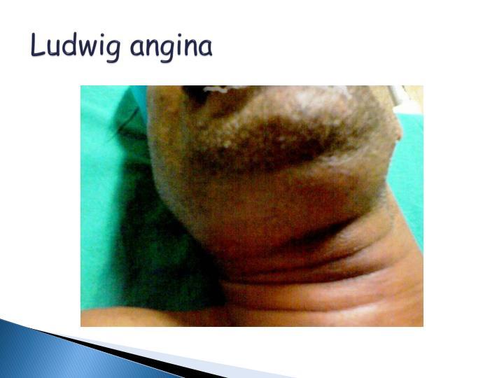 Ludwig angina