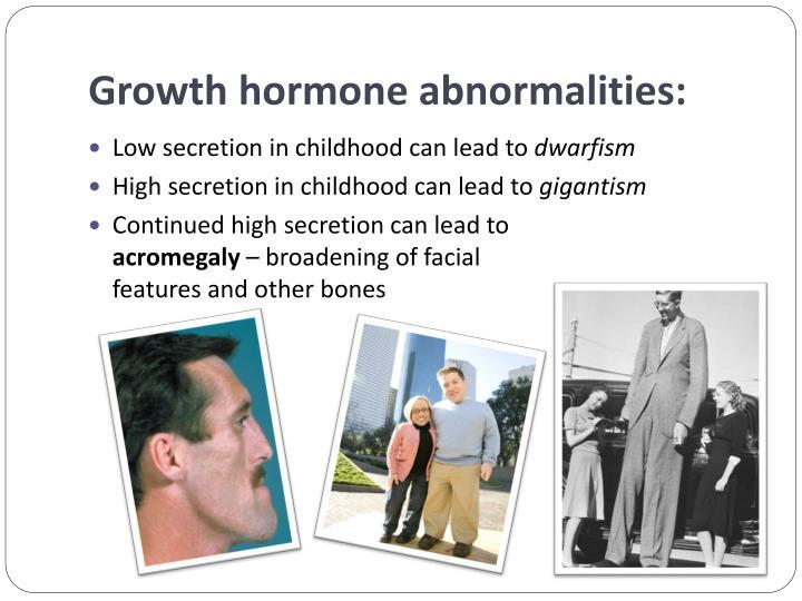 Growth hormone abnormalities: