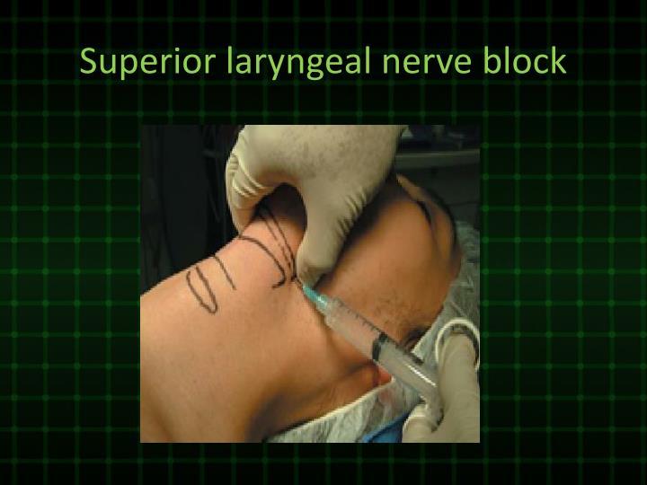Superior laryngeal nerve block