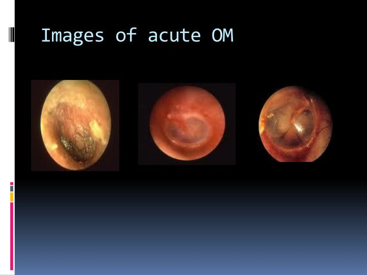 Images of acute OM