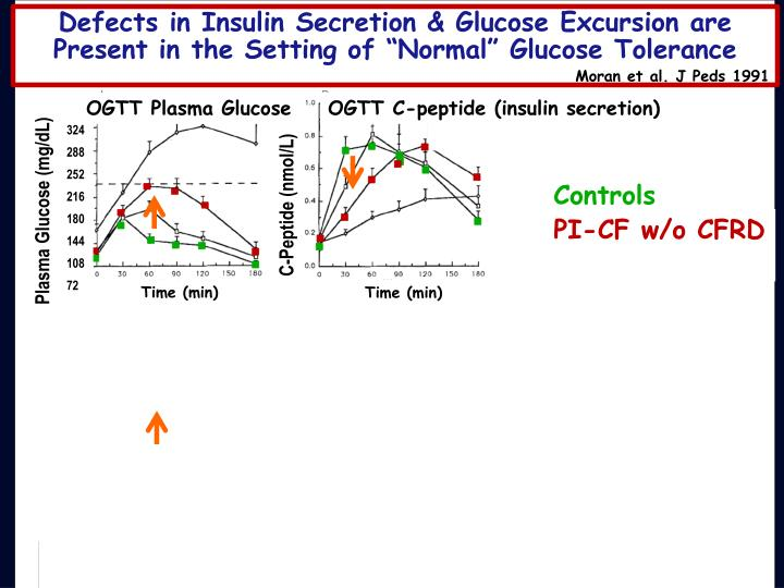 "Defects in Insulin Secretion & Glucose Excursion are Present in the Setting of ""Normal"" Glucose Tolerance"
