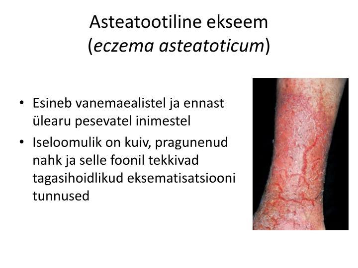Asteatootiline ekseem