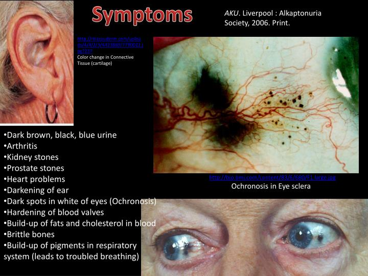 alkaptonuria the black urine disease Alkaptonuria, a genetic disease described in signs of the disease alkaptonuria is a rare will cause it to turn black the urine from a person with.