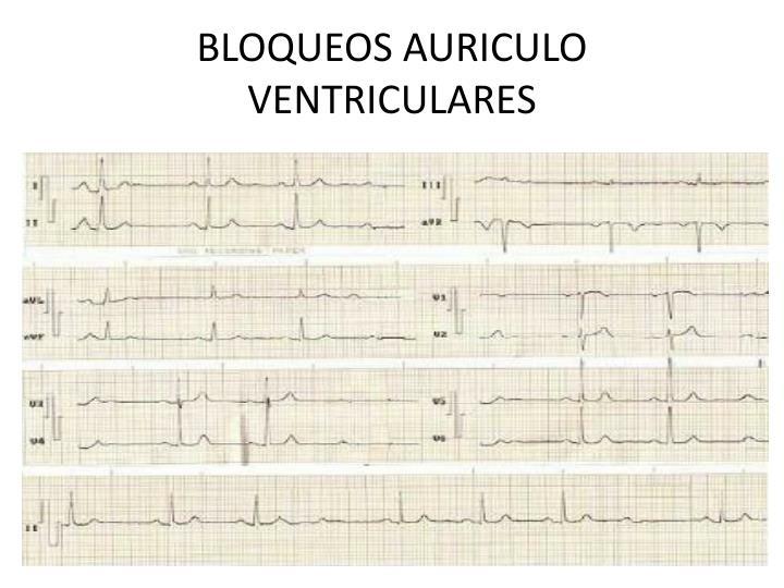 BLOQUEOS AURICULO VENTRICULARES