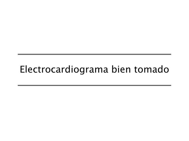 Electrocardiograma bien tomado