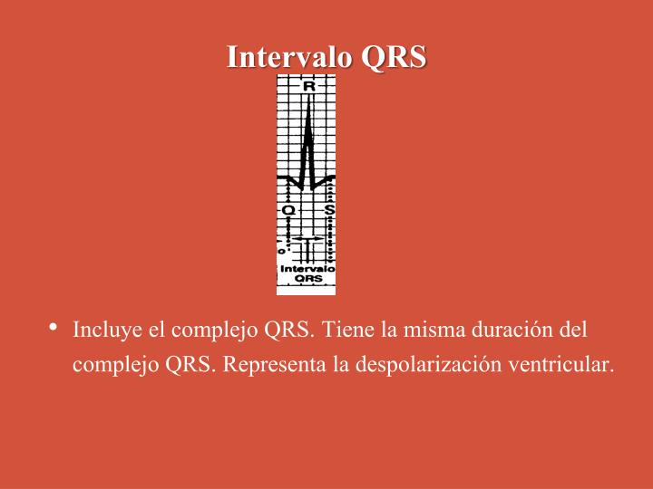 Intervalo QRS