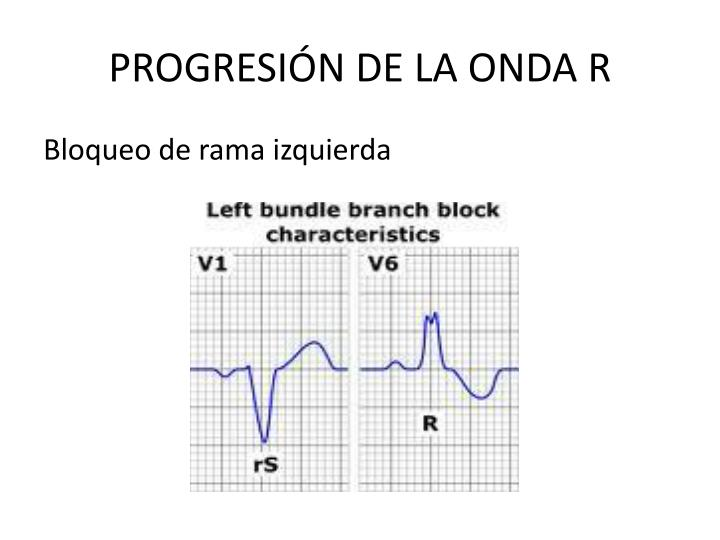 PROGRESIÓN DE LA ONDA R