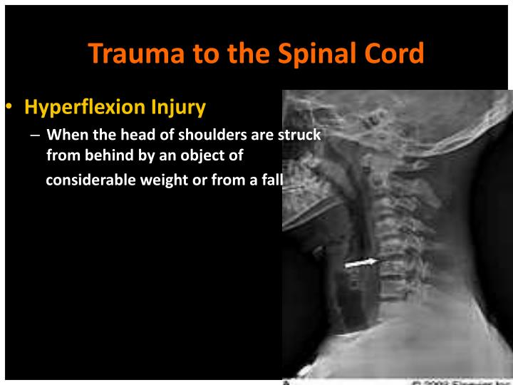 Trauma to the Spinal Cord