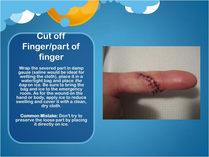 Cut off Finger/part of finger