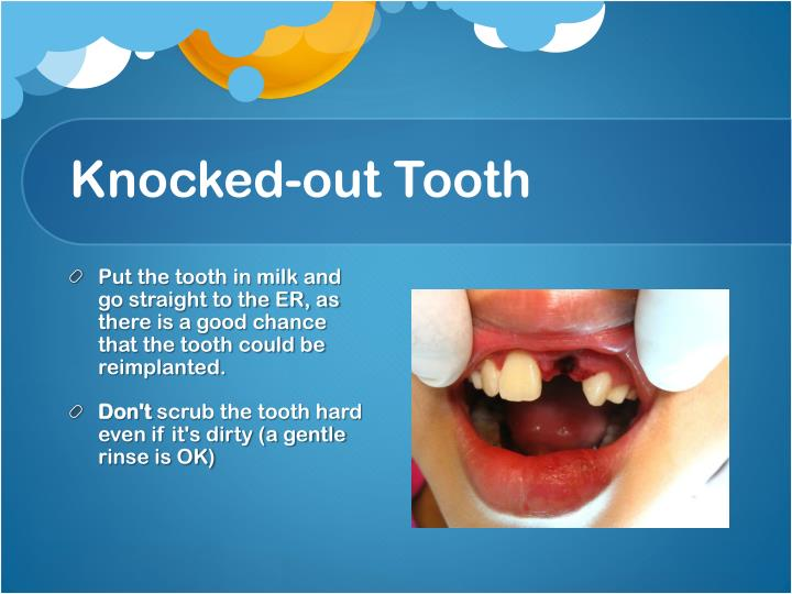 Knocked-out Tooth
