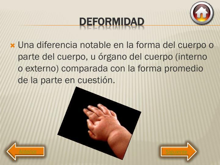 Una diferencia notable en la forma del cuerpo o parte del cuerpo, u órgano del cuerpo (interno o externo) comparada con la forma promedio de la parte en cuestión.