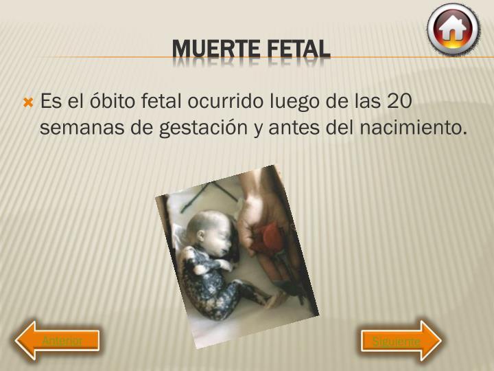 Es el óbito fetal ocurrido luego de las 20 semanas de gestación y antes del nacimiento.
