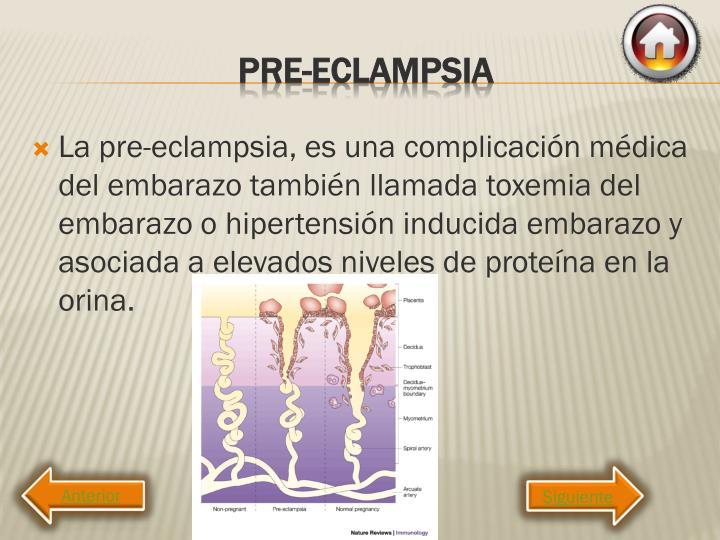 La pre-eclampsia, es una complicación médica del embarazo también llamada toxemia del embarazo o hipertensión inducida embarazo y asociada a elevados niveles de proteína en la orina.