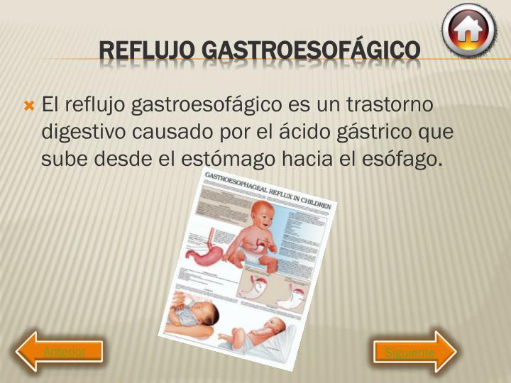 El reflujo gastroesofágico es un trastorno digestivo causado por el ácido gástrico que sube desde el estómago hacia el esófago.