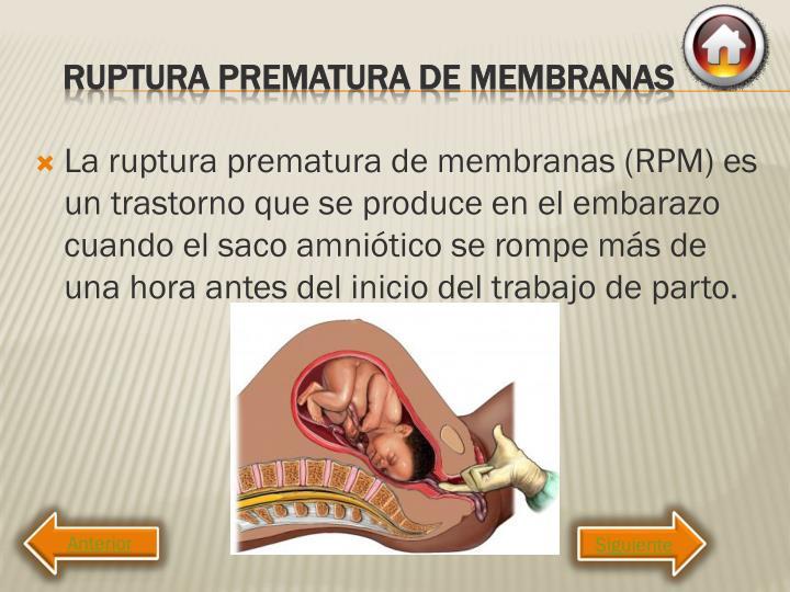 La ruptura prematura de membranas (RPM) es un trastorno que se produce en el embarazo cuando el saco amniótico se rompe más de una hora antes del inicio del trabajo de parto.