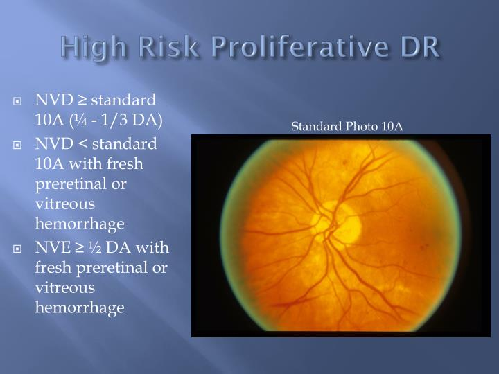 High Risk Proliferative DR