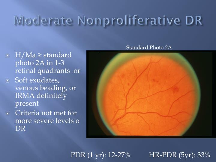 Moderate Nonproliferative DR